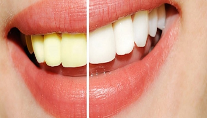 9 Amazing Ways to Whiten Your Teeth