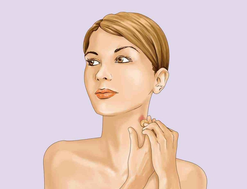how to remove hickeys